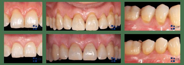 Periodoncia - Antes y Después