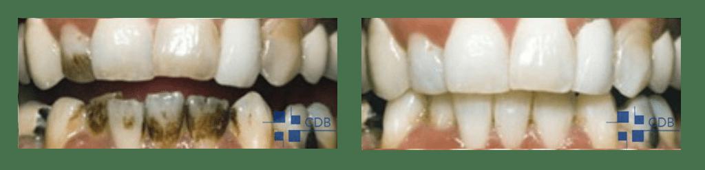 Tabaco - Antes y Después