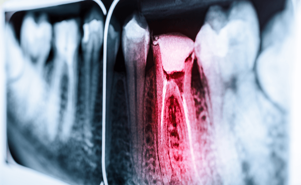 consiste tratamiento endodoncia