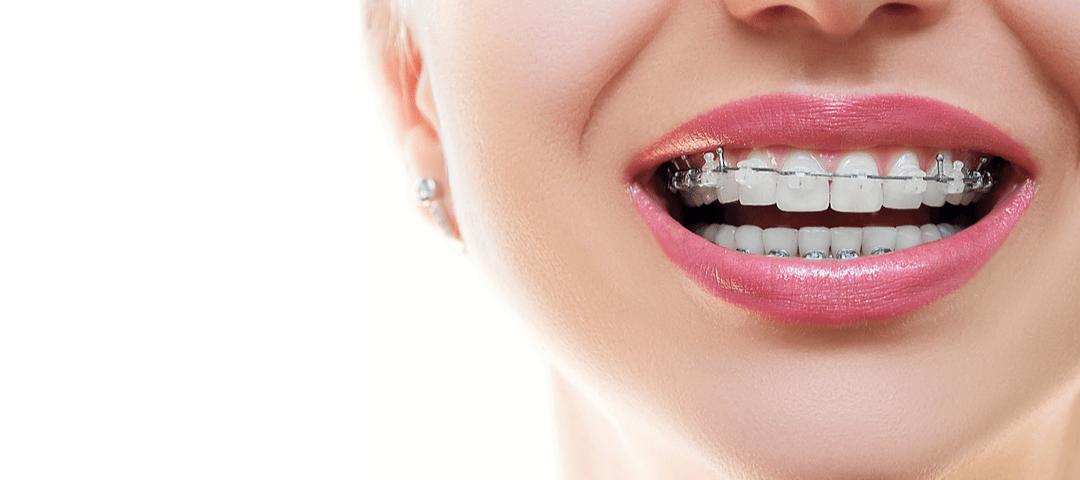 ortodonciaenadultos