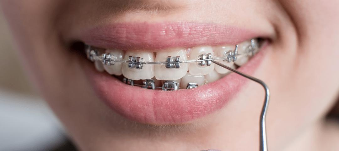 cuidado de la ortodoncia