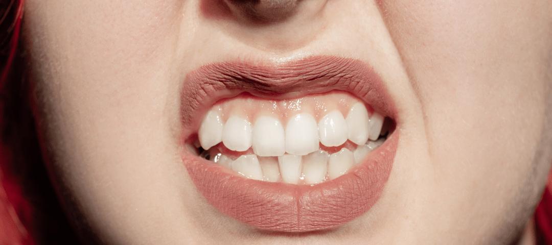 dientes fuera de la boca