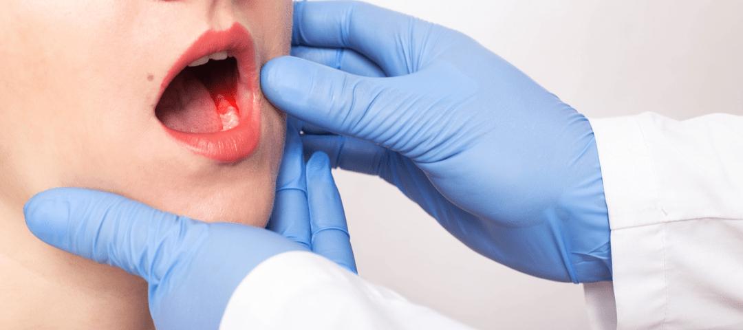 tumor odontogénico