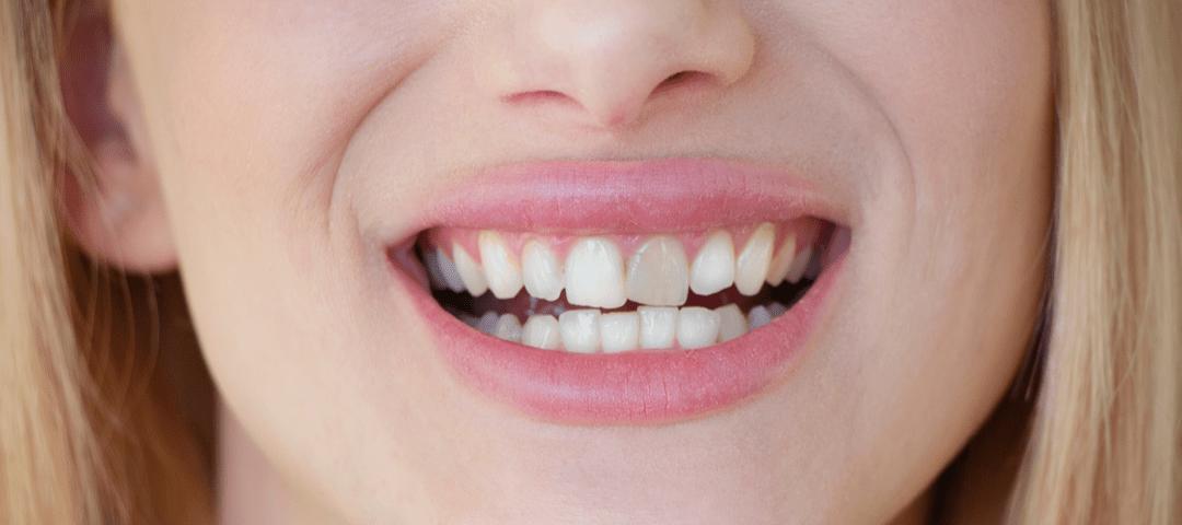 diente de turner