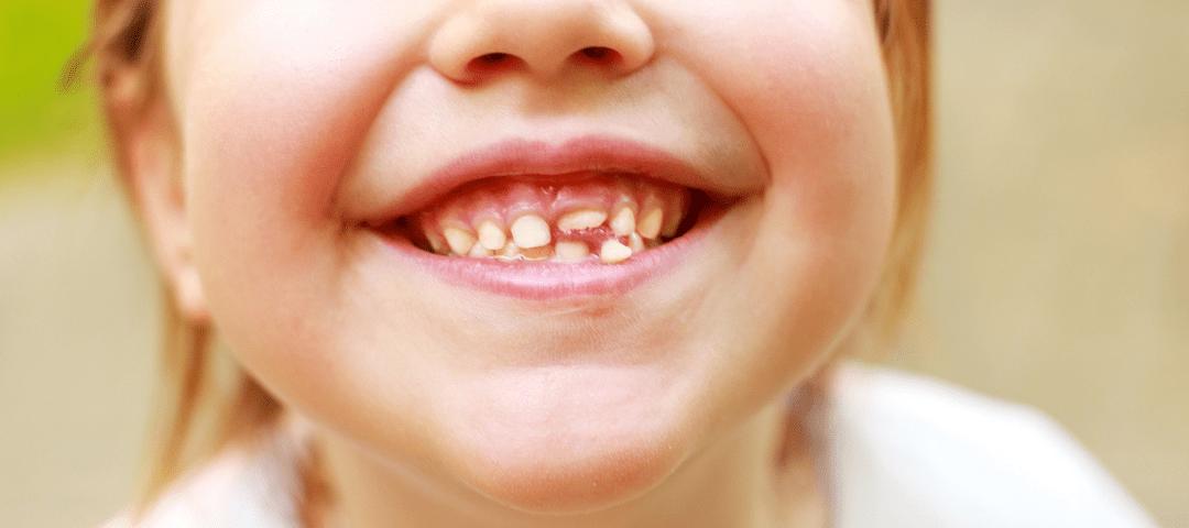orden de salida y caída de los dientes