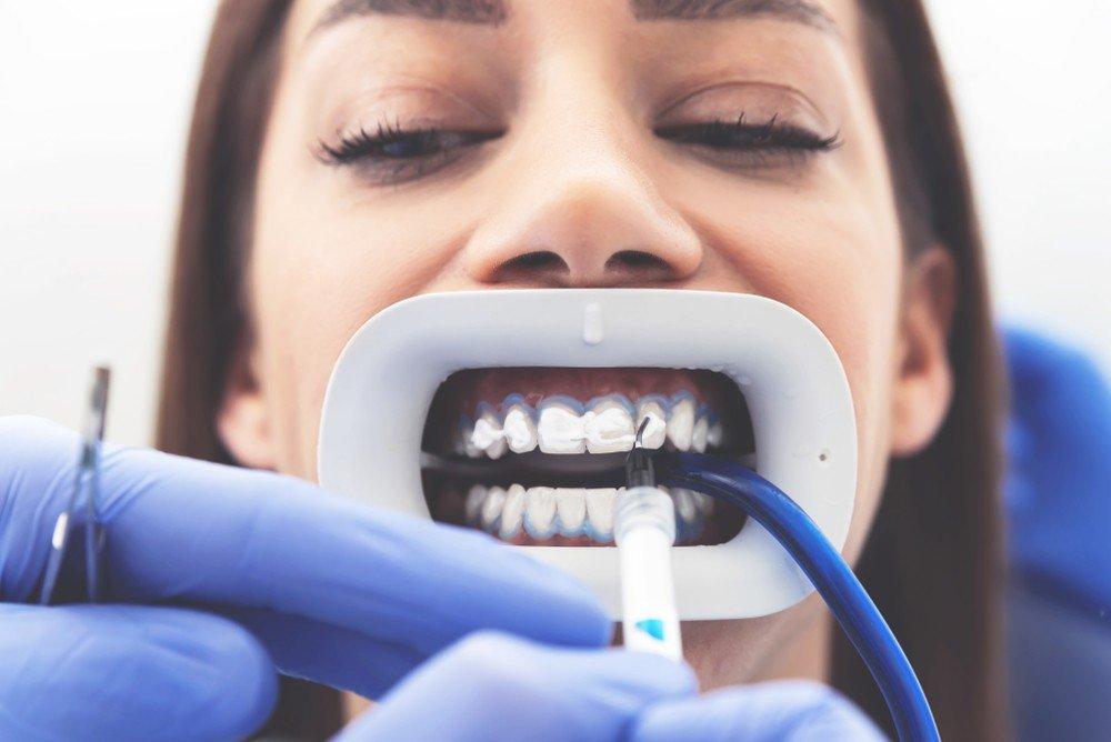 Blanqueamiento dental barcelona