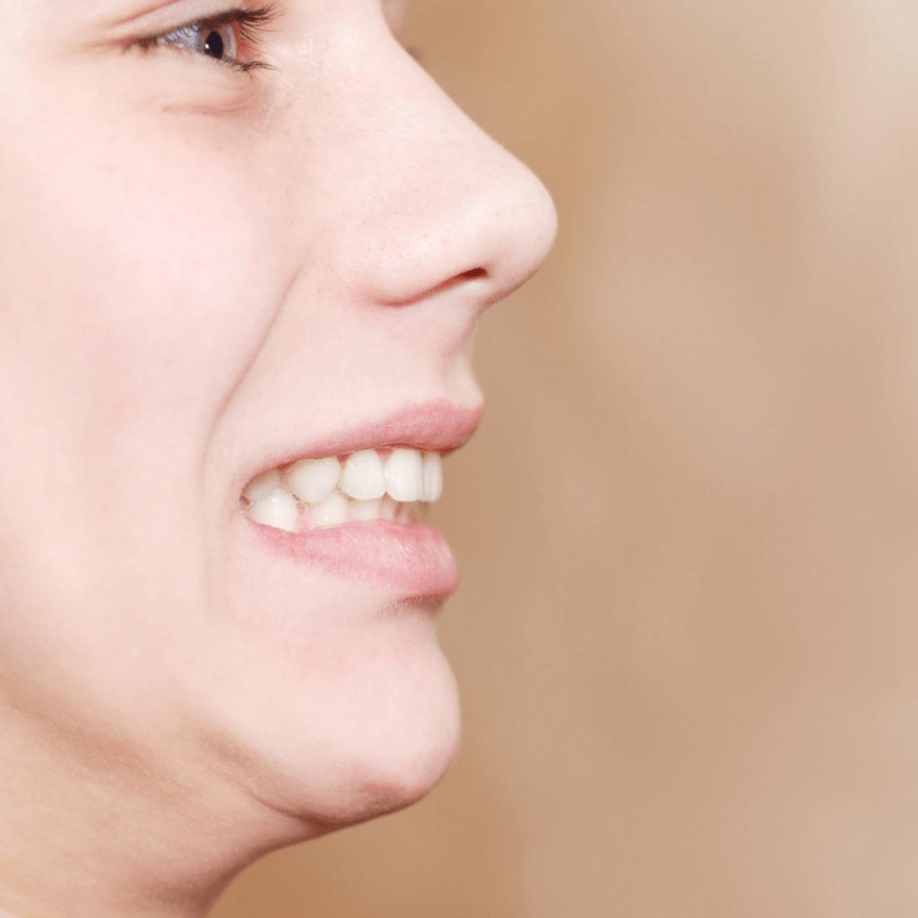 casos ortodoncia lingual