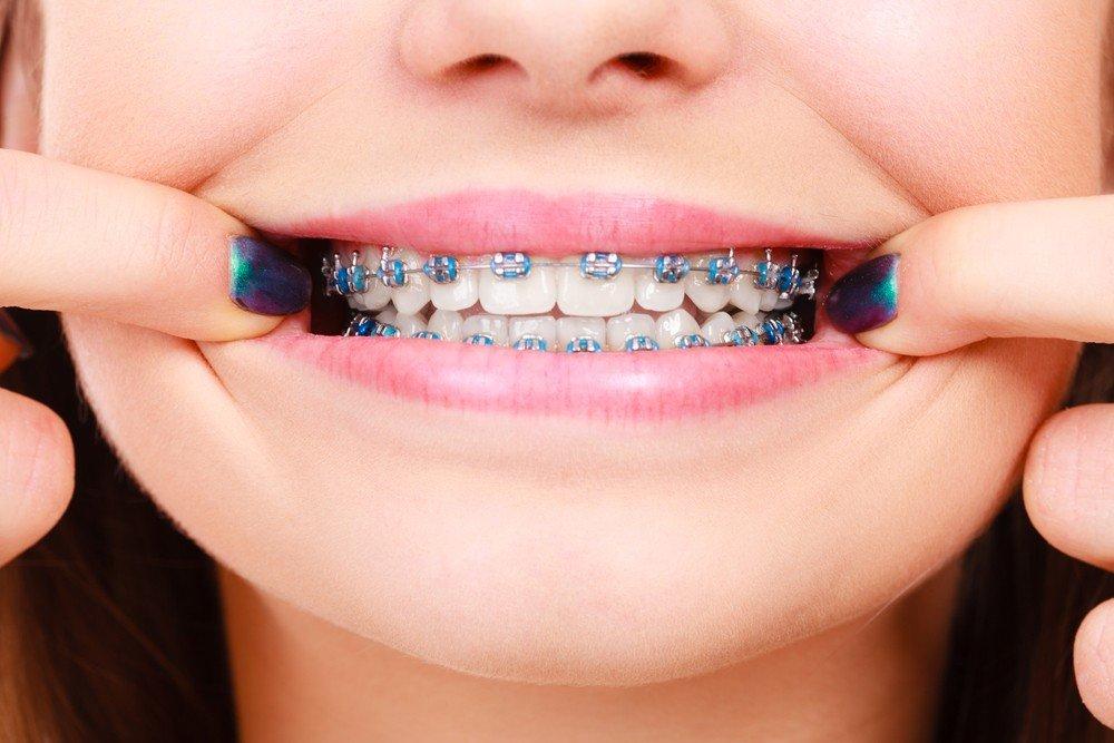 ortodoncia niños barcelona