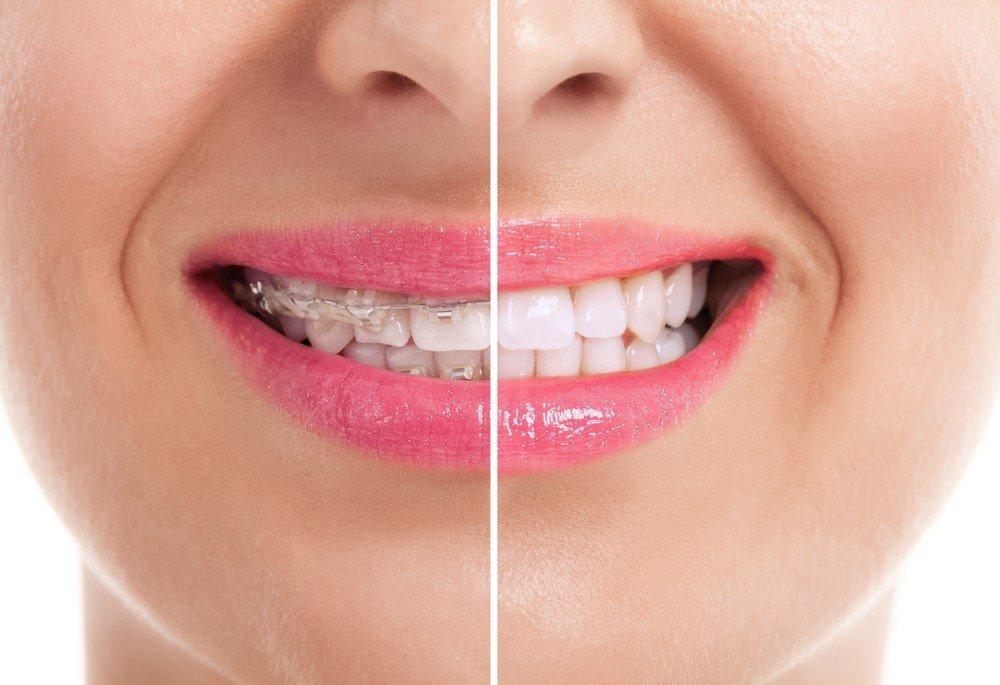 especialistas ortodoncia barcelona