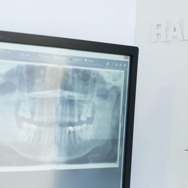 tipos odontologia conservadora barcelona